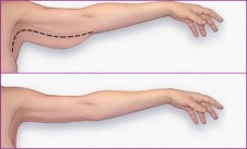 3-minute-arm-workout-to-lose-arm-fat